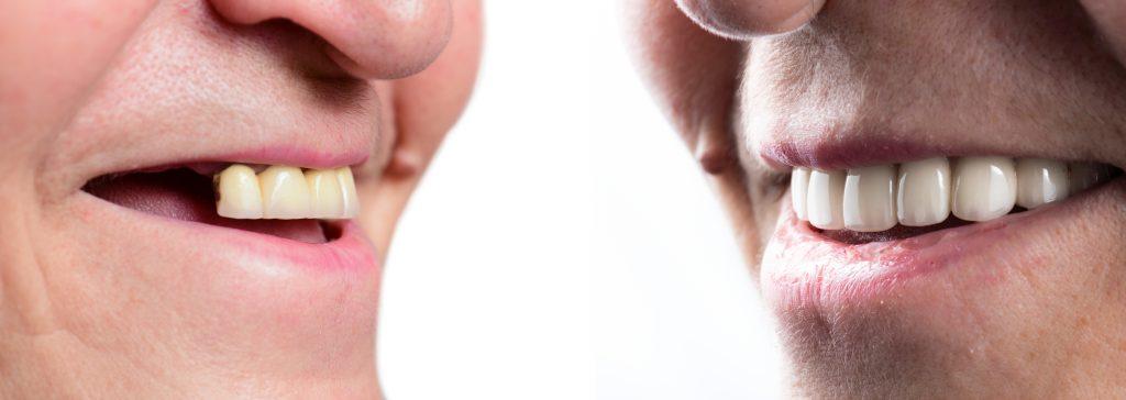 dental implants for dentures