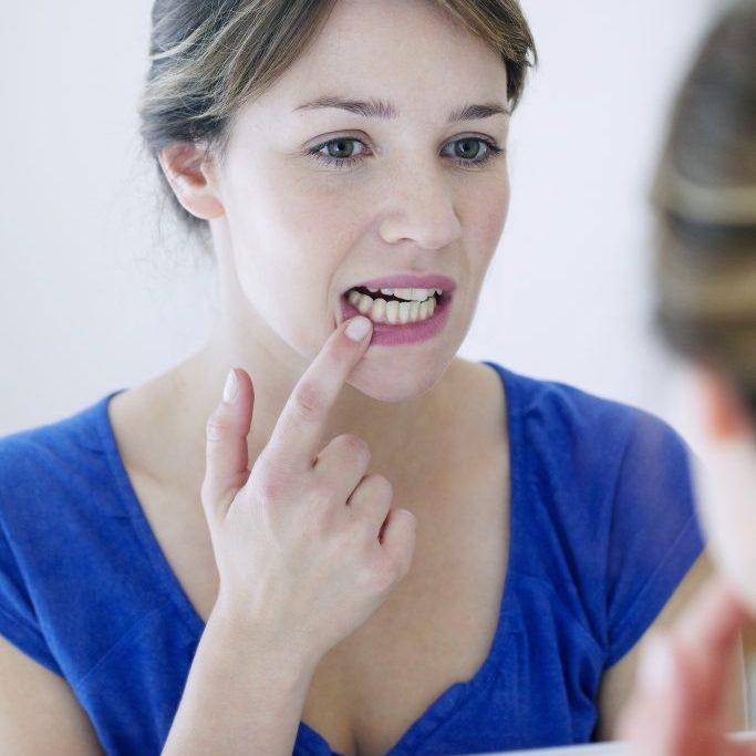 Gingivitis & Gum Disease