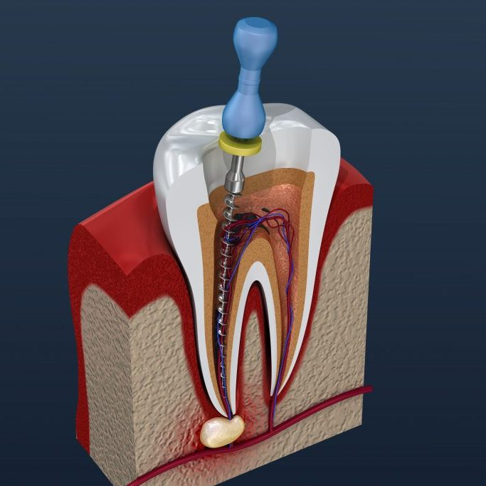 root canal dentist